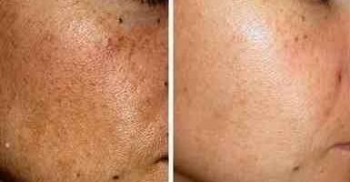 Decolorazione di zinco di unguento di pelle